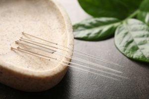 akupunktur-ammersee-traditionelle-chinesische-Medizin-cornelia-mantel-arnold